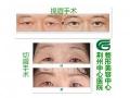 【荆医小课堂】提眉和切眉手术的区别大不大?