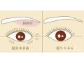 【荆医小课堂】提眉手术术后能维持几年时间?