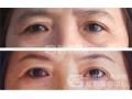 荆州哪家医院做提眉手术效果最好?术后多久可以看到效果