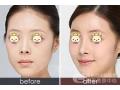 【荆医小课堂】脸上打了玻尿酸硬块怎么办?