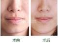 荆州医院做厚唇修薄手术价格大概是多少?