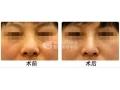 沙市医院做鼻孔缩小手术多少钱?