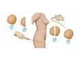 自体隆胸失败后多久才可以坐修复手术?
