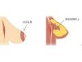 荆州哪家医院做乳房上提术后恢复效果比较好?