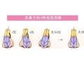 荆州医院董洁主任做歪鼻矫正费用是多少?