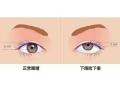 眼睑下垂手术前后需要注意的一些事项