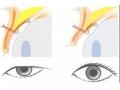 肿眼泡如何治疗,割双眼皮效果怎样