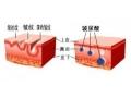 荆州医院680元肉毒素祛鱼尾纹的效果怎么样?