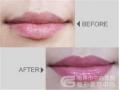 漂唇后多久时间能消肿?