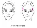 丰太阳穴帮你改善脸型