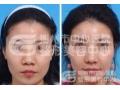 玻尿酸隆鼻术后多久才会定型?