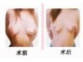 荆州可以做乳房外扩手术吗?