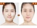 去颊脂垫术后脸部会凹陷吗?