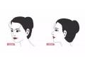 玻尿酸注射额头后感觉凹凸不平怎么办?