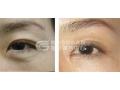 切眉手术和双眼皮手术可以同时做吗?
