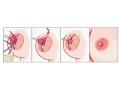 乳头内陷的成因