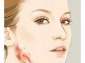 去除疤痕有哪些有效的方法呢