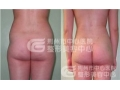 臀部吸脂手术安全吗?臀部吸脂最多能吸取多少脂肪?