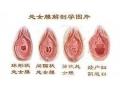 处女膜修复手术后如何预防感染?