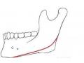 磨骨改脸型手术方法