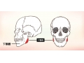 下颌角改小的手术过程和手术优点