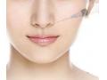 玻尿酸隆鼻能保持多久呢