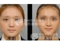 荆州瘦脸针的*低价是880吗?沙市那边多少钱?