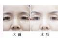 【荆医小课堂】提眉手术术后会留疤吗?可能性大不大?