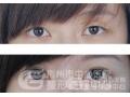 荆州医院做双眼皮修复手术价位一览表