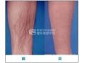 荆州激光脱腿毛年卡多少钱?