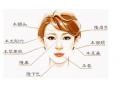面部填充主要应用于哪些部位
