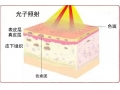 祛雀斑的三种方法及激光祛雀斑的注意事项