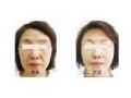 荆州医院做面部除皱需要花多少钱呢?