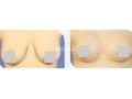 做完胸部吸脂手术需要卧床休息几天?