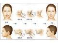 下颌角整形术后会影响吃饭吗?