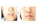 荆州哪位医生做唇腭裂修复手术效果*好?