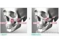 荆州哪家医院做颧骨整形手术效果最好?
