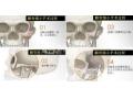 沙市做颧骨整形手术效果多少钱?