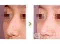 荆州医院做驼峰鼻矫正手术费用是多少?