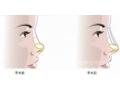 沙市医院哪位医生做朝天鼻矫正手术效果最好?