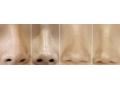 荆州可以做歪鼻矫正手术吗?手术费用是多少?