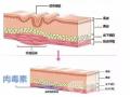 玻尿酸和肉毒素祛除鱼尾纹首选哪一种?