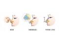 做完鼻部矫正术后发现鼻头歪了怎么办?