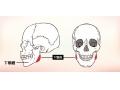 下颌角切除术的优点和危害