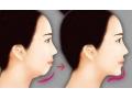 假体隆下巴和玻尿酸隆下巴对比