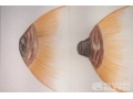 乳头内陷该怎么预防?出现乳头内陷又应该如何矫正?