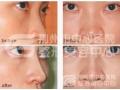 荆州医院假体隆鼻术后恢复效果怎么样?
