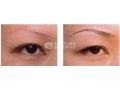 纹绣眉会不会对眼睛造成影响?