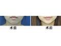 下颌角切除术后是不是就真的瘦脸了?术后会不会反弹?