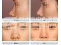 荆州医院:为什么医生不建议做注射隆鼻?